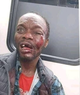 Anambra Bus Preacher Beaten To Coma After Condoms Fall From Bible (Photos)