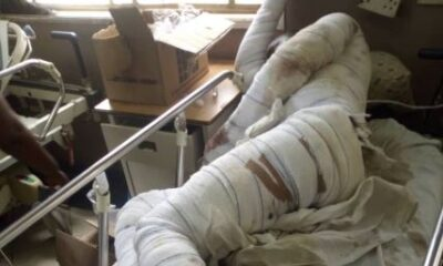 Gbagada General Hospital Doctors 'Abandoned' After 'Critical COVID-19 Case'